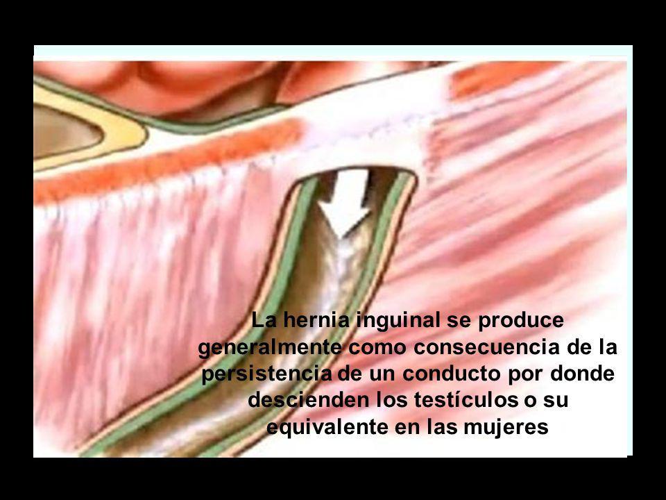 La hernia inguinal se produce generalmente como consecuencia de la persistencia de un conducto por donde descienden los testículos o su equivalente en las mujeres