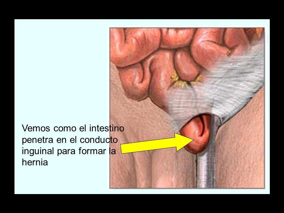 Vemos como el intestino penetra en el conducto inguinal para formar la hernia