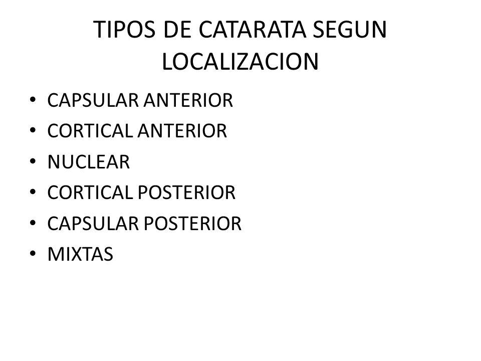 TIPOS DE CATARATA SEGUN LOCALIZACION