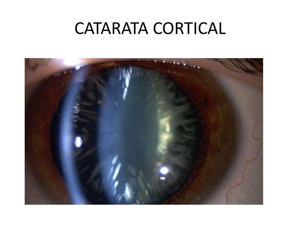 CATARATA CORTICAL