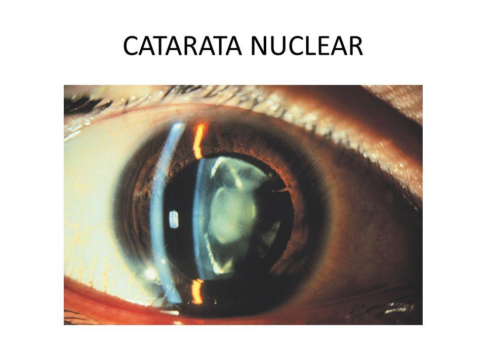 CATARATA NUCLEAR