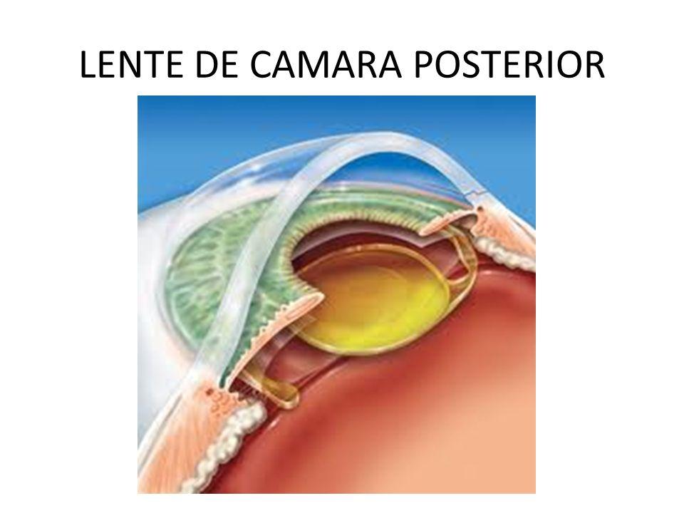 LENTE DE CAMARA POSTERIOR