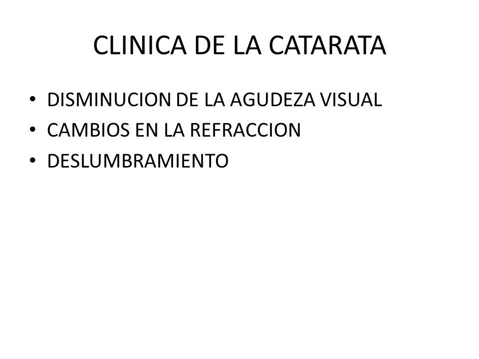 CLINICA DE LA CATARATA DISMINUCION DE LA AGUDEZA VISUAL