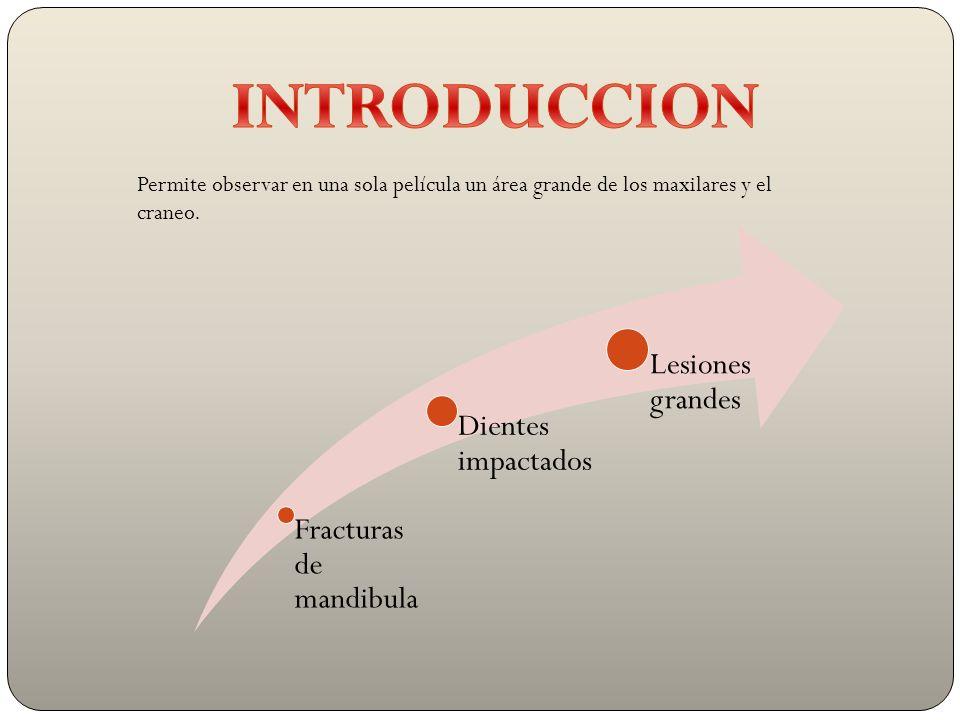 INTRODUCCION Lesiones grandes Dientes impactados