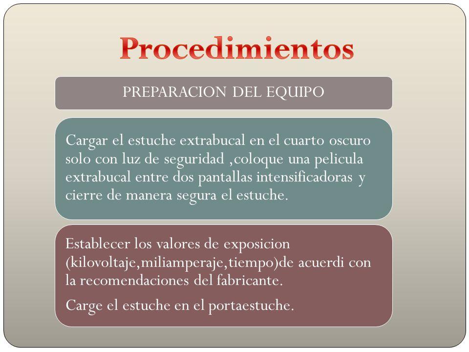 PREPARACION DEL EQUIPO