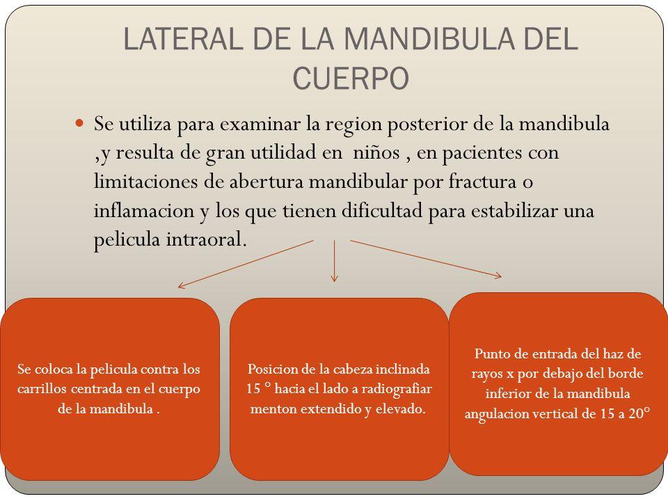 LATERAL DE LA MANDIBULA DEL CUERPO