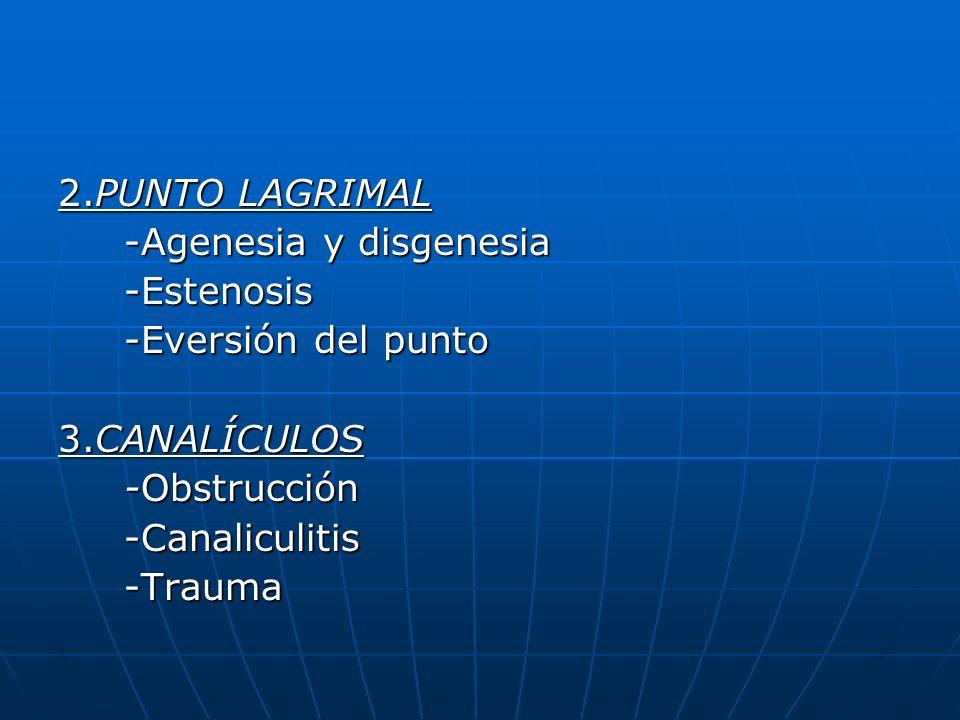 2.PUNTO LAGRIMAL -Agenesia y disgenesia. -Estenosis. -Eversión del punto. 3.CANALÍCULOS. -Obstrucción.