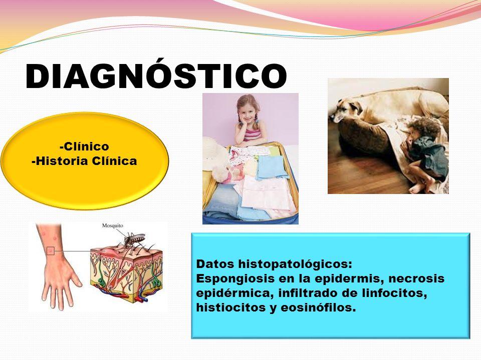 DIAGNÓSTICO -Clínico -Historia Clínica Datos histopatológicos: