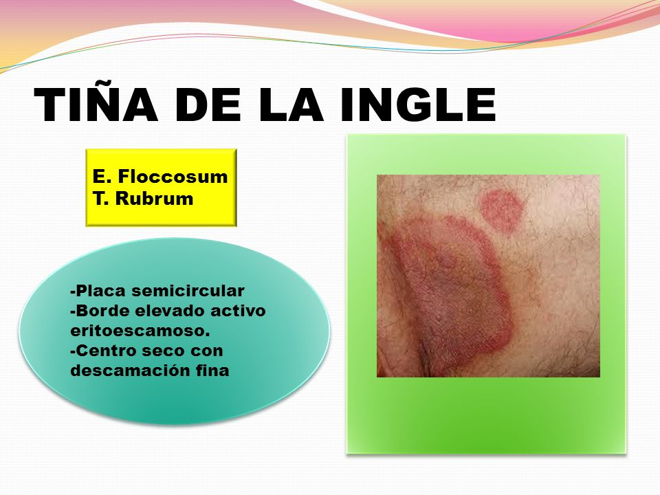 TIÑA DE LA INGLE E. Floccosum T. Rubrum -Placa semicircular
