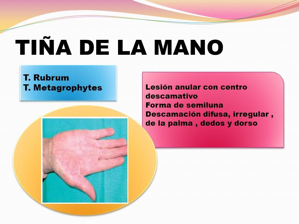 TIÑA DE LA MANO T. Rubrum T. Metagrophytes