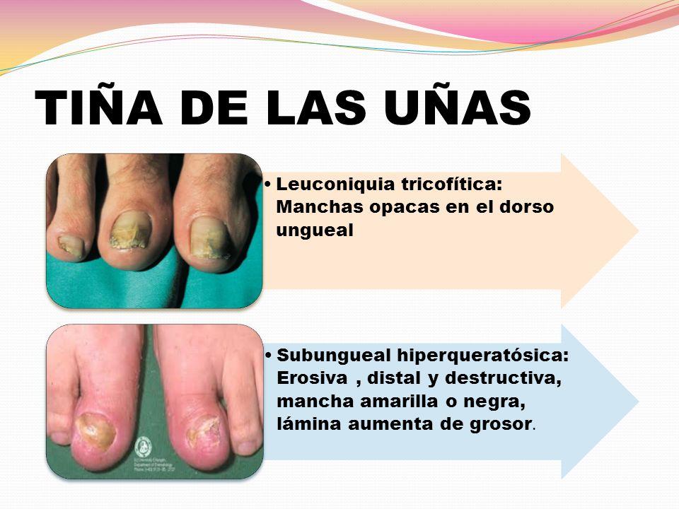 TIÑA DE LAS UÑAS Leuconiquia tricofítica: Manchas opacas en el dorso ungueal.