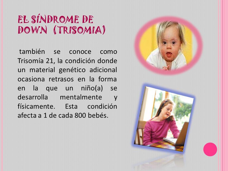 EL SÍNDROME DE DOWN (TRISOMIA)