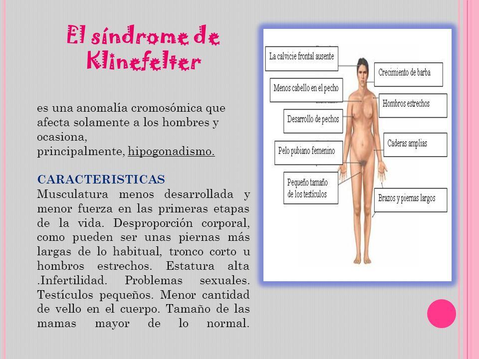 El síndrome de Klinefelter