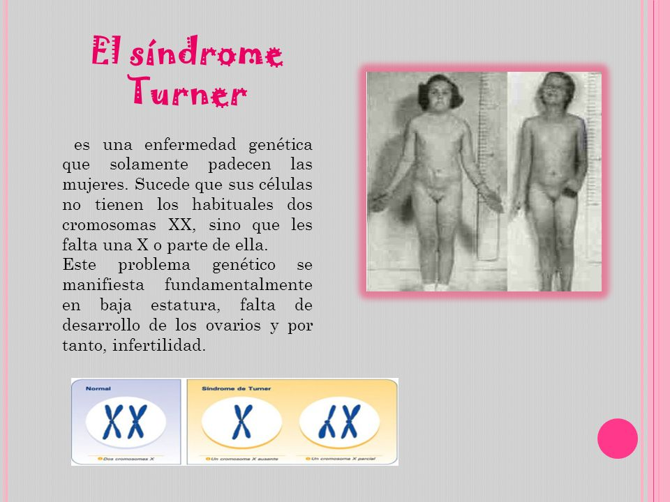 El síndrome Turner