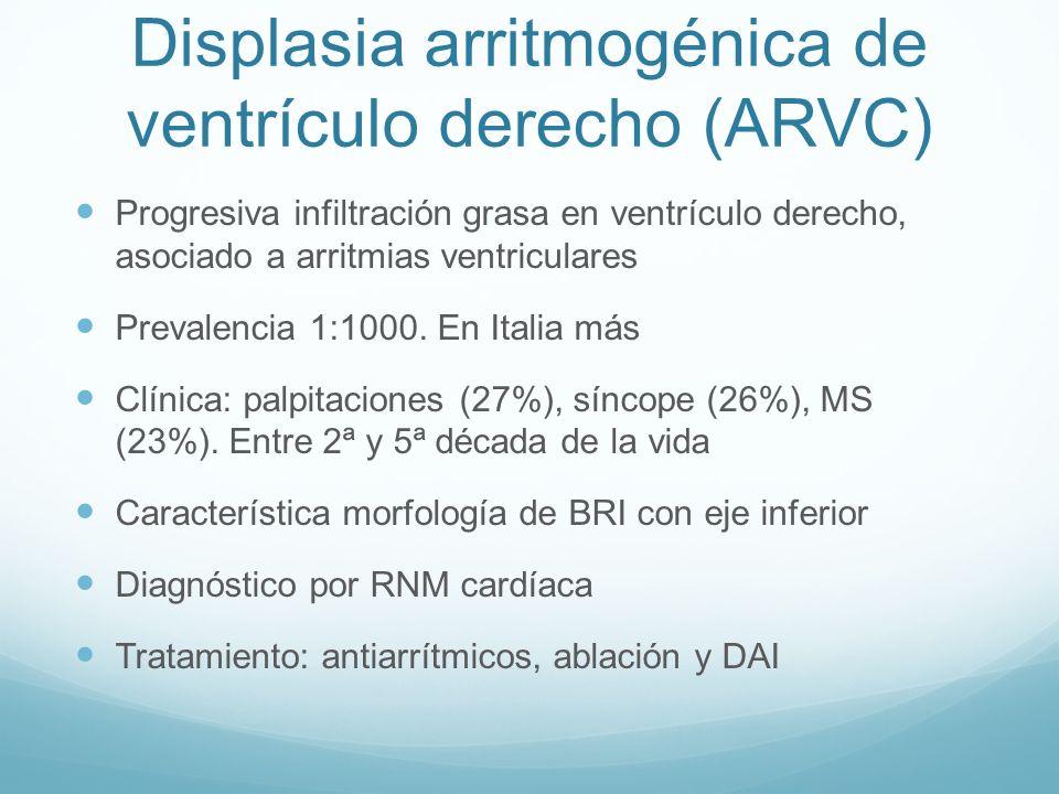 Displasia arritmogénica de ventrículo derecho (ARVC)