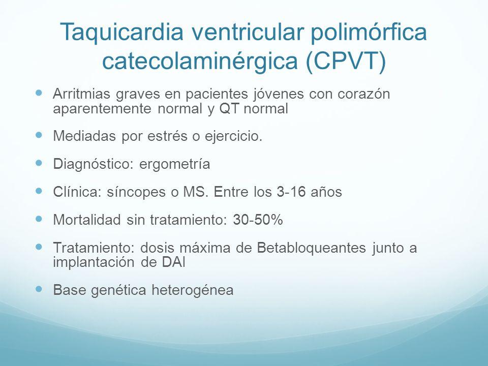 Taquicardia ventricular polimórfica catecolaminérgica (CPVT)