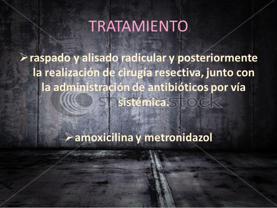 amoxicilina y metronidazol