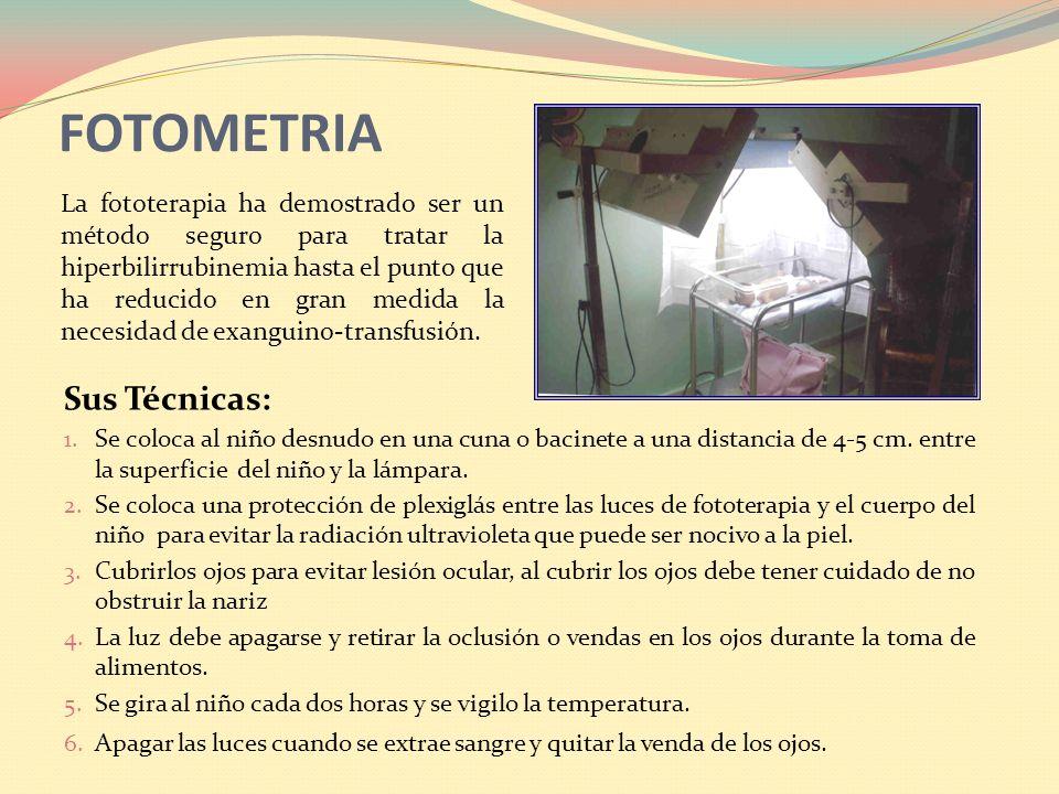 FOTOMETRIA Sus Técnicas: