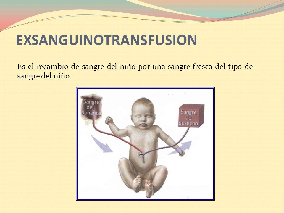 EXSANGUINOTRANSFUSION