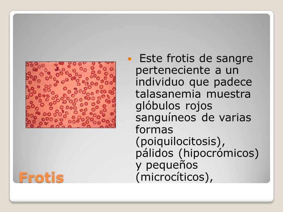 Este frotis de sangre perteneciente a un individuo que padece talasanemia muestra glóbulos rojos sanguíneos de varias formas (poiquilocitosis), pálidos (hipocrómicos) y pequeños (microcíticos),