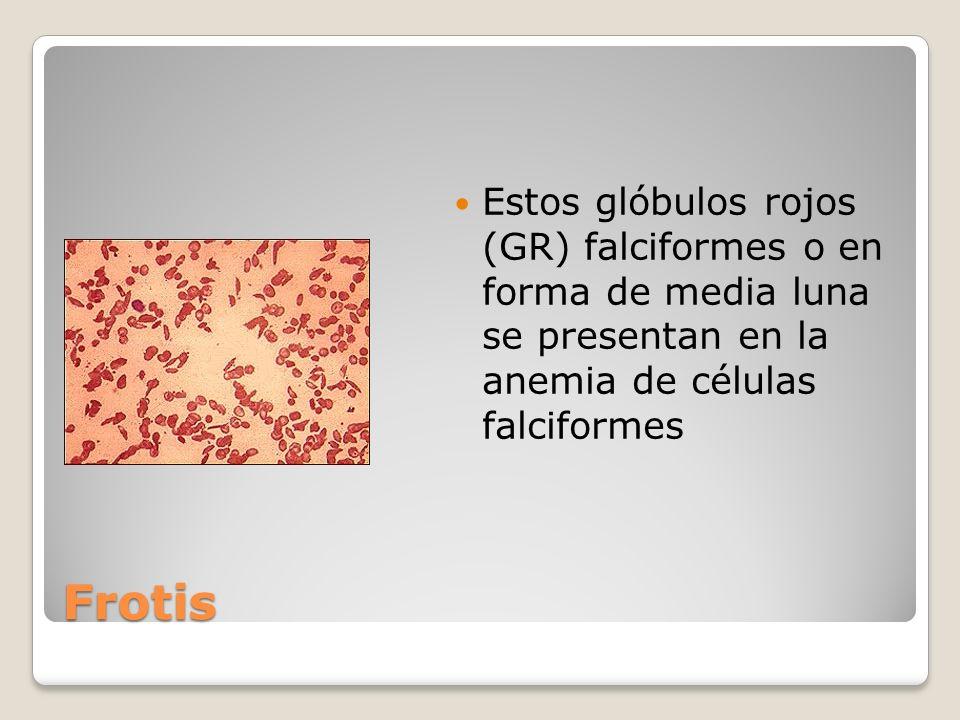 Estos glóbulos rojos (GR) falciformes o en forma de media luna se presentan en la anemia de células falciformes