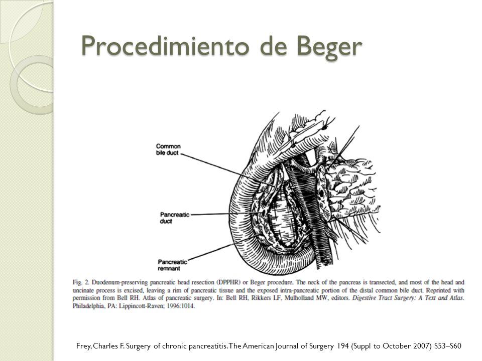 Procedimiento de Beger
