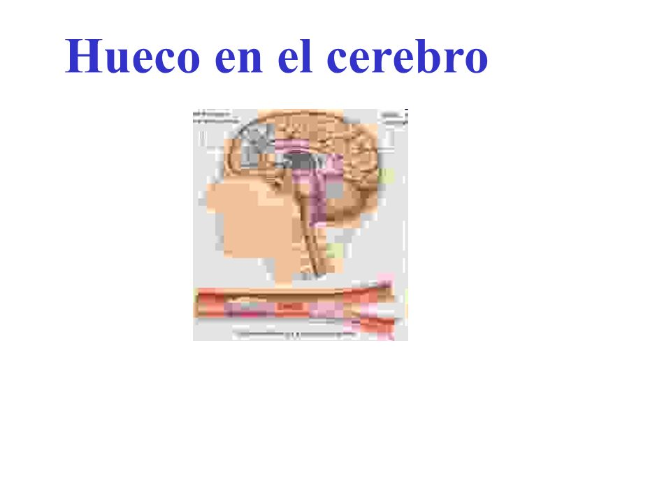 Hueco en el cerebro