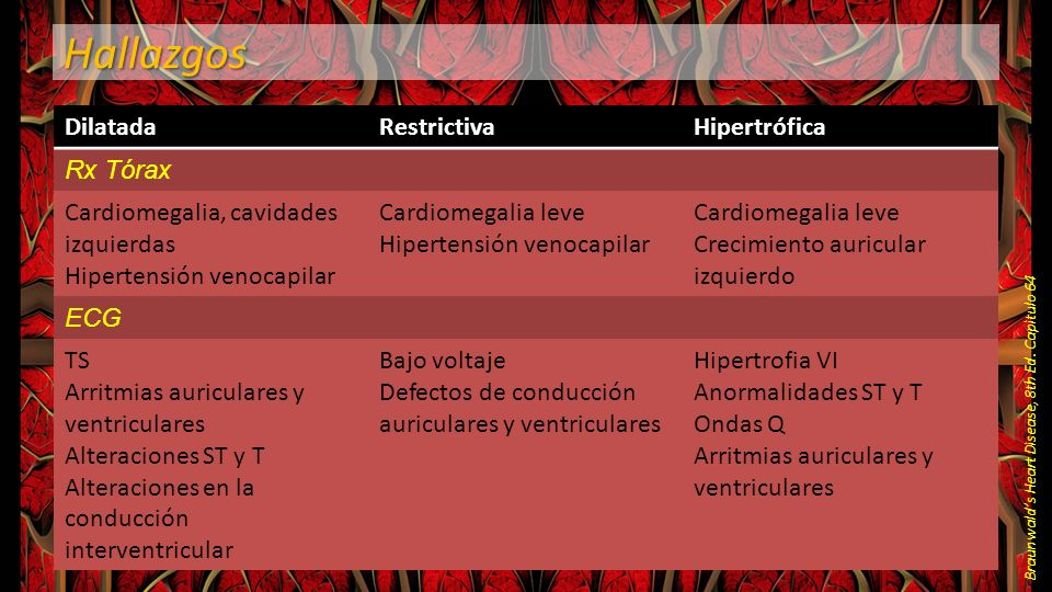 Hallazgos Dilatada Restrictiva Hipertrófica Rx Tórax