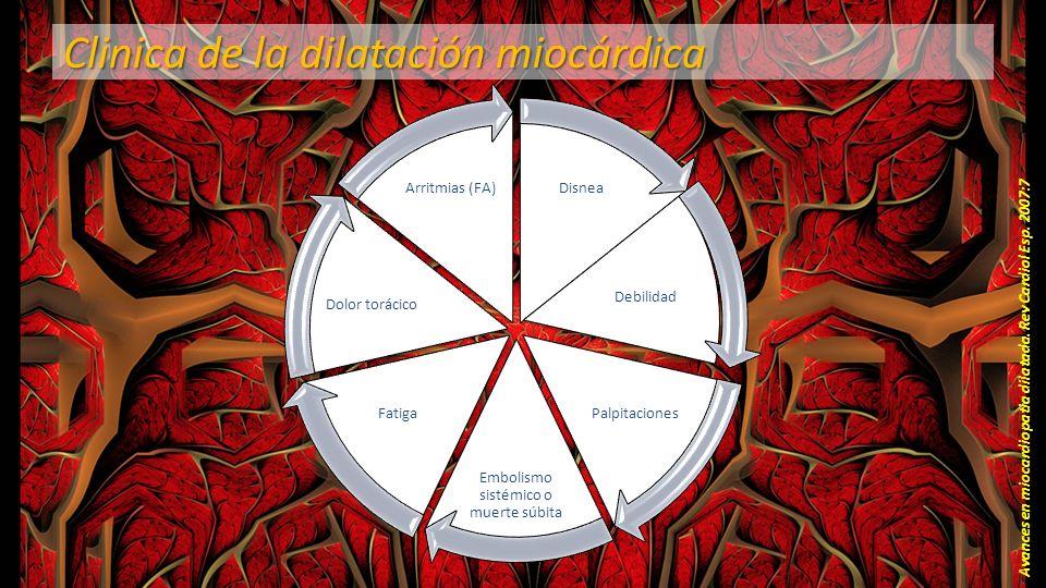 Clinica de la dilatación miocárdica
