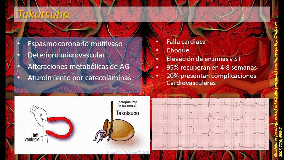 Takotsubo Espasmo coronario multivaso Deterioro microvascular