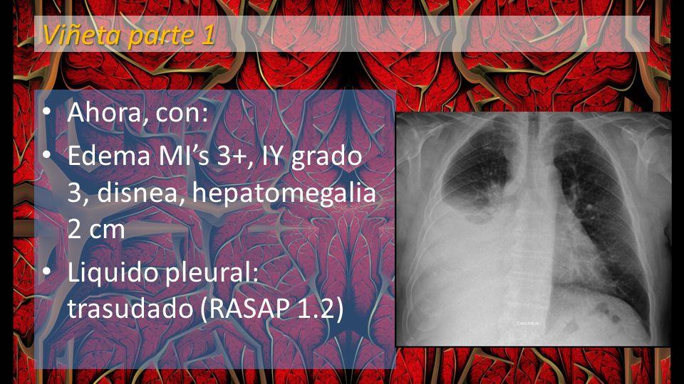 Viñeta parte 1 Ahora, con: Edema MI's 3+, IY grado 3, disnea, hepatomegalia 2 cm.