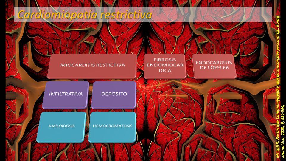 Cardiomiopatía restrictiva