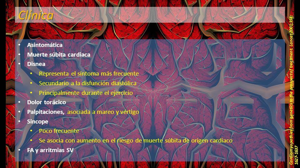 Clínica Asintomática Muerte súbita cardiaca Disnea