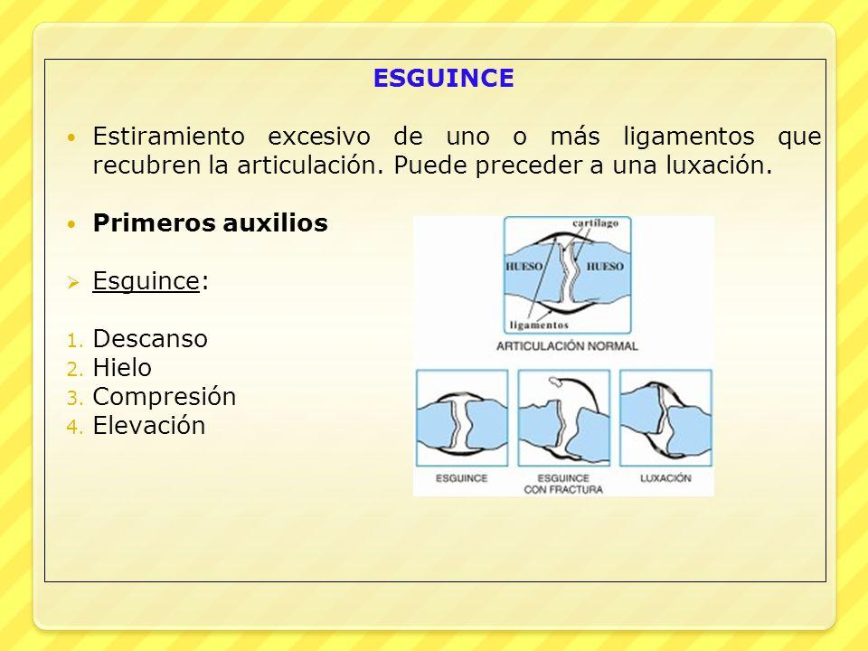 ESGUINCE Estiramiento excesivo de uno o más ligamentos que recubren la articulación. Puede preceder a una luxación.