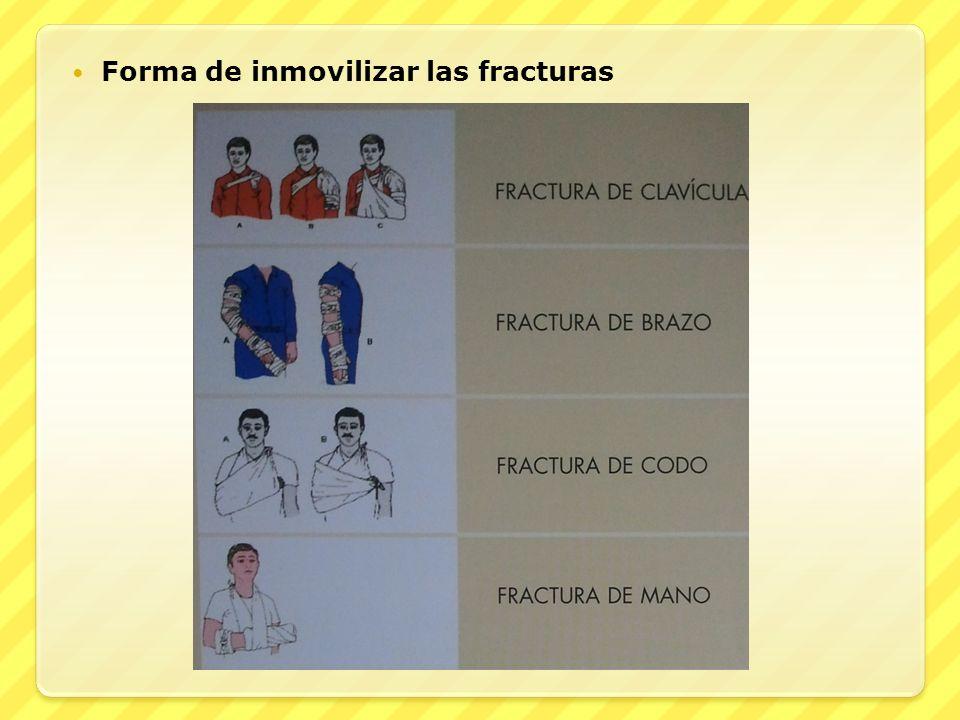 Forma de inmovilizar las fracturas