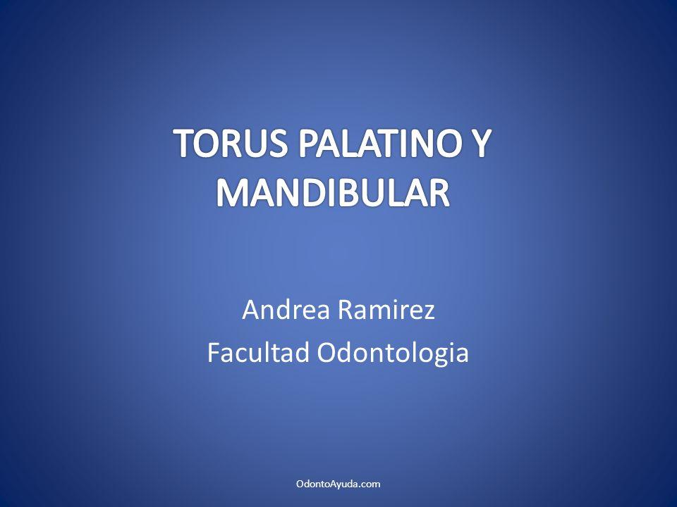 TORUS PALATINO Y MANDIBULAR