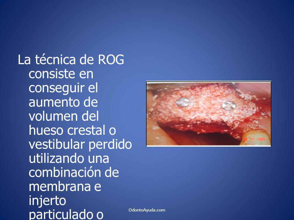 La técnica de ROG consiste en conseguir el aumento de volumen del hueso crestal o vestibular perdido utilizando una combinación de membrana e injerto particulado o simplemente membrana y coágulo sanguíneo.