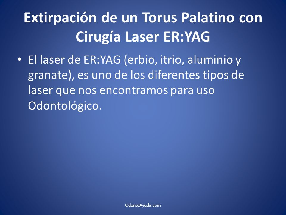 Extirpación de un Torus Palatino con Cirugía Laser ER:YAG