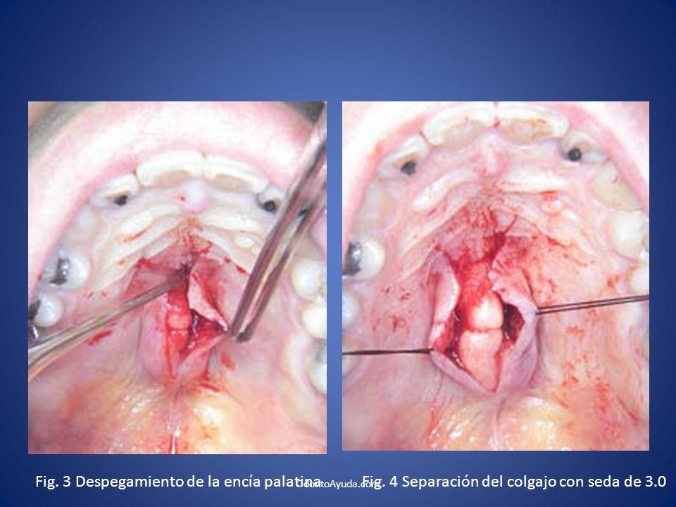 Fig. 3 Despegamiento de la encía palatina