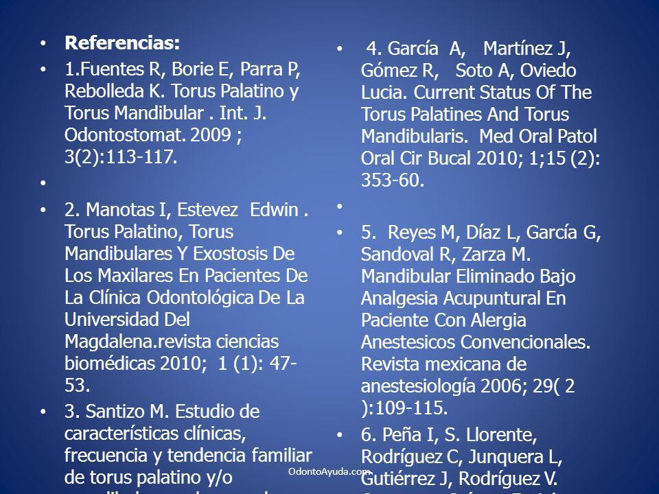 Referencias: 1.Fuentes R, Borie E, Parra P, Rebolleda K. Torus Palatino y Torus Mandibular . Int. J. Odontostomat. 2009 ; 3(2):113-117.