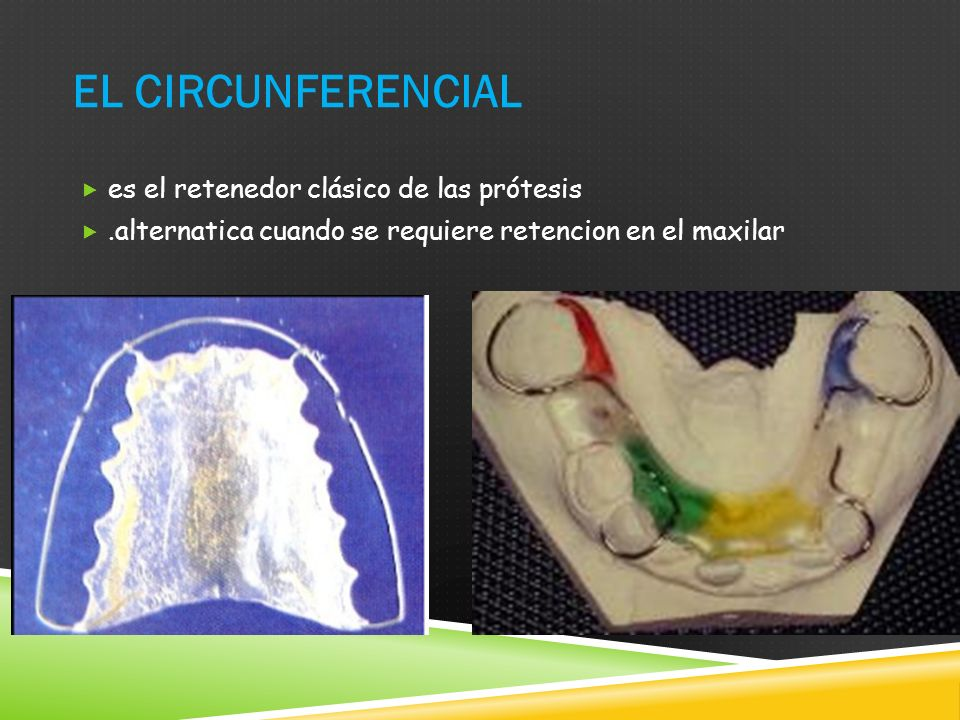 El circunferencial es el retenedor clásico de las prótesis