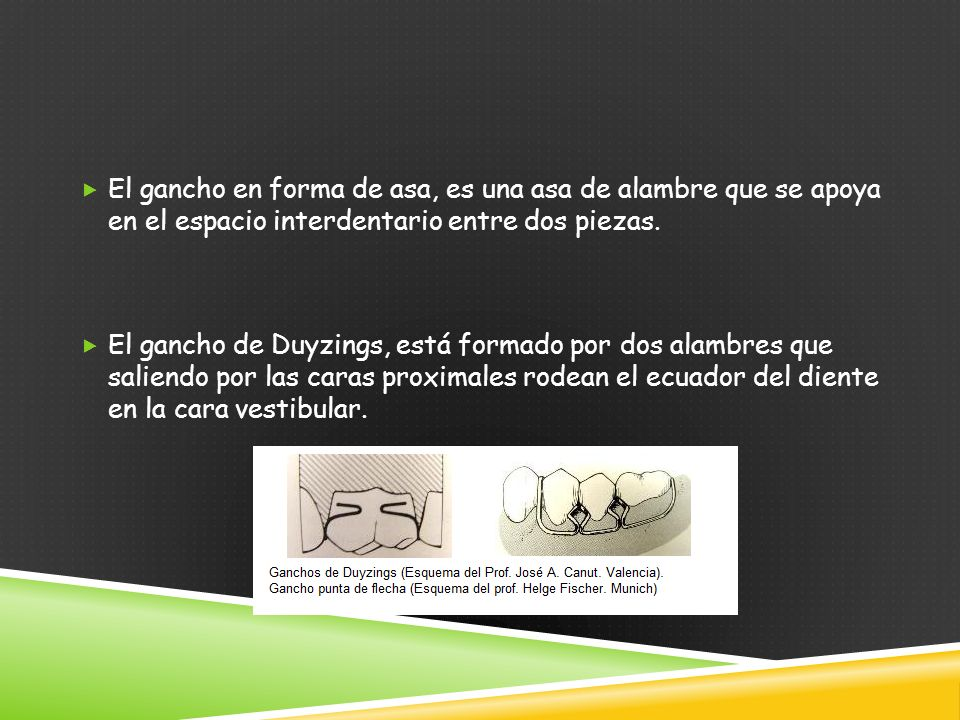 El gancho en forma de asa, es una asa de alambre que se apoya en el espacio interdentario entre dos piezas.