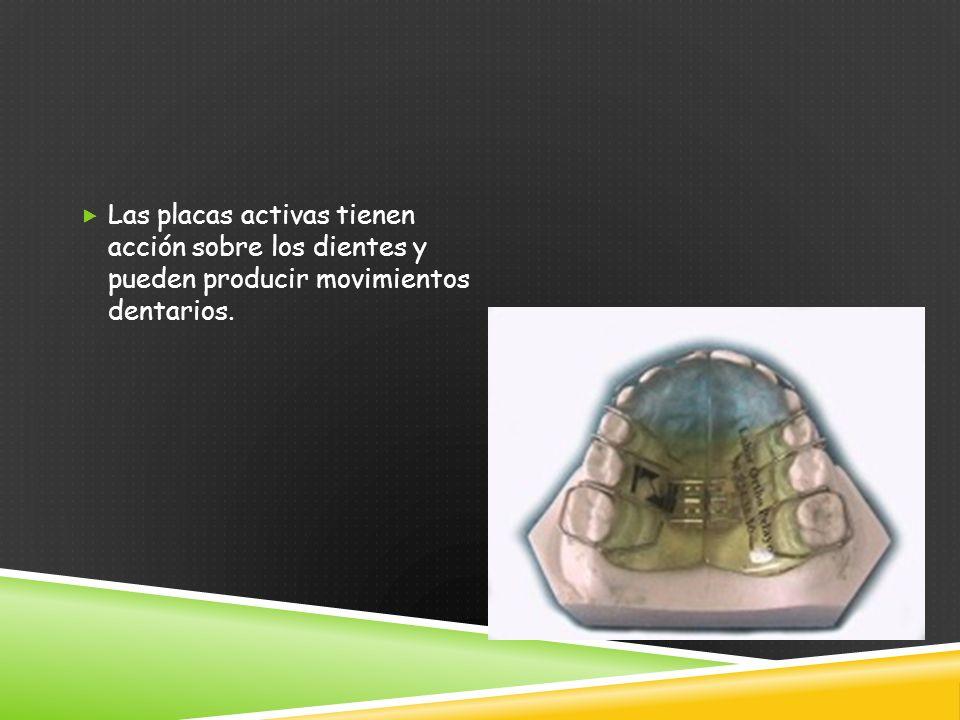 Las placas activas tienen acción sobre los dientes y pueden producir movimientos dentarios.