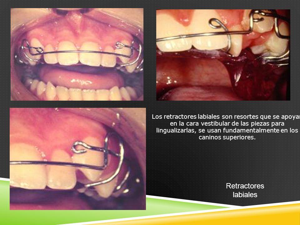 Los retractores labiales son resortes que se apoyan en la cara vestibular de las piezas para lingualizarlas, se usan fundamentalmente en los caninos superiores.