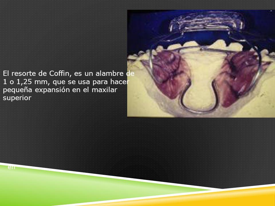 El resorte de Coffin, es un alambre de 1 o 1,25 mm, que se usa para hacer pequeña expansión en el maxilar superior