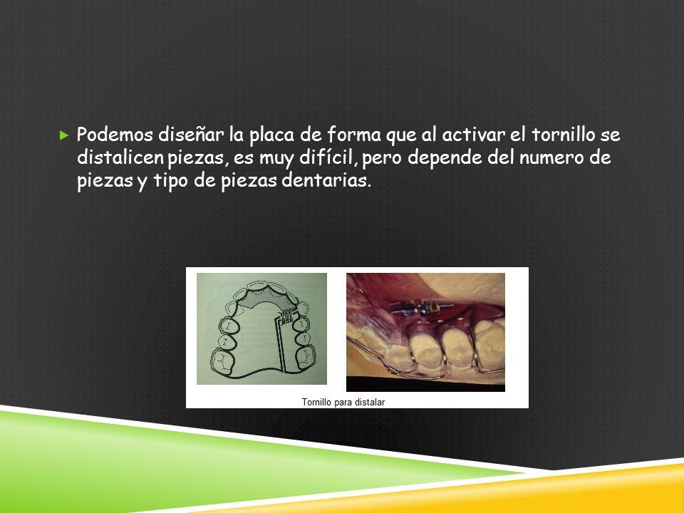 Podemos diseñar la placa de forma que al activar el tornillo se distalicen piezas, es muy difícil, pero depende del numero de piezas y tipo de piezas dentarias.