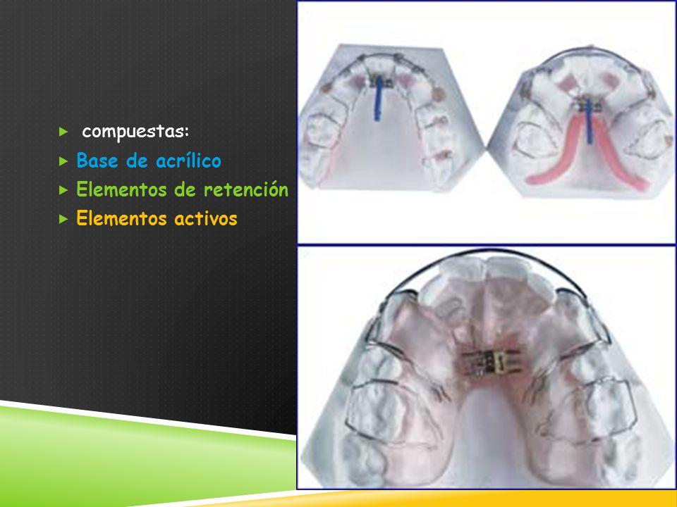 compuestas: Base de acrílico Elementos de retención Elementos activos