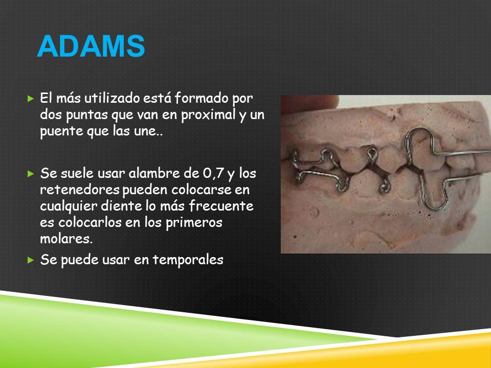 ADAMS El más utilizado está formado por dos puntas que van en proximal y un puente que las une..