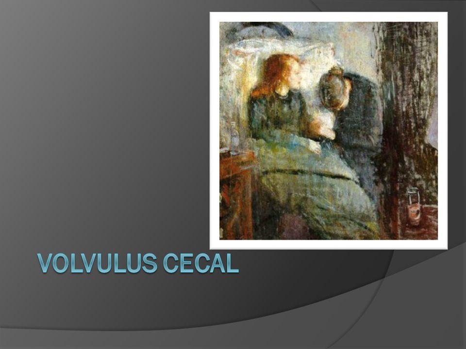 VOLVULUS CECAL
