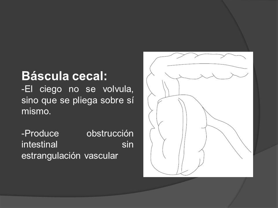 Báscula cecal: El ciego no se volvula, sino que se pliega sobre sí mismo.